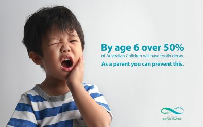 Tooth decay – a preventable problem