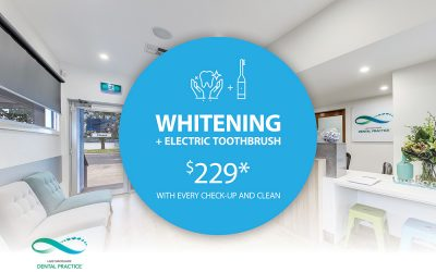 Teeth Whitening-Limited offer